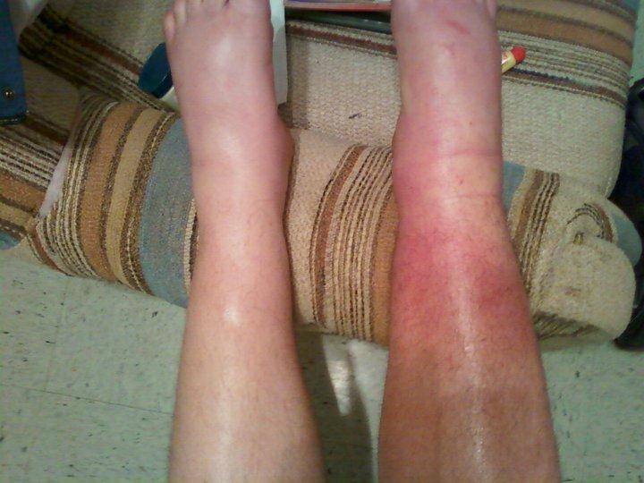 Swollen Legs 45